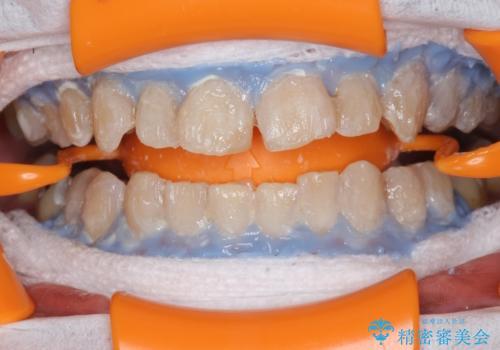 PMTCで歯の着色を除去し、ホワイトニングできれいに。の治療中