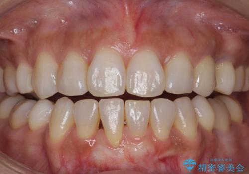 白い歯で素敵な笑顔に。の症例 治療前