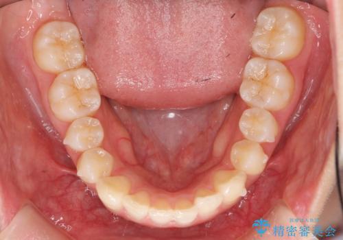 前歯のねじれ マウスピース矯正での治療中