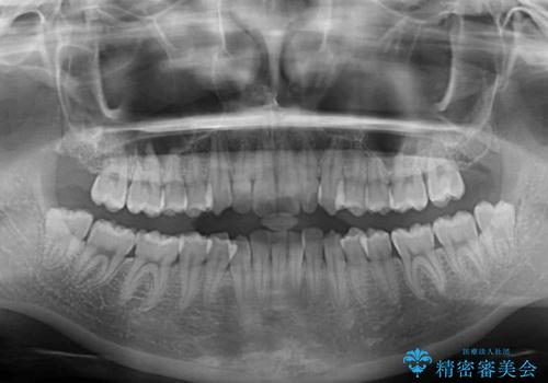 前歯のデコボコを治したい インビザラインによる非抜歯矯正治療の治療前