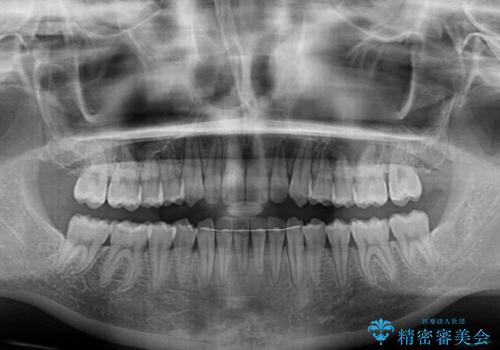 前歯のデコボコを治したい インビザラインによる非抜歯矯正治療の治療後