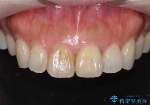 前歯の変色 見える前歯の審美改善セラミック治療の治療前