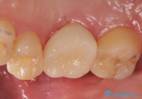 オールセラミッククラウン 歯茎より深い虫歯(縁下カリエス)の治療の治療後