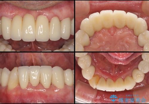 ボロボロの歯を何とかしたい 総合歯科治療による全顎治療の治療後