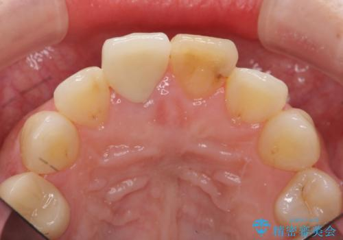 前歯の変色 見える前歯の審美改善セラミック治療の治療後
