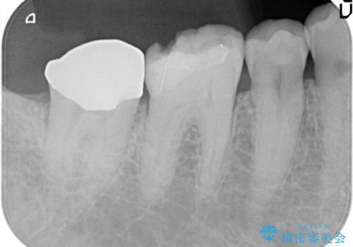 奥歯がかけた。セラミッククラウンによる修復の治療前