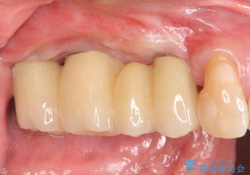 重度に吸収した歯槽骨を再建 インプラント咬合機能回復の治療後