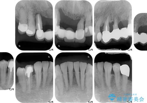 前歯が抜け落ちそう インプラントと入れ歯を用いた全顎治療の治療前