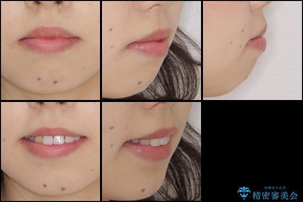 後戻りの再矯正 インビザラインによる矯正治療の治療前(顔貌)