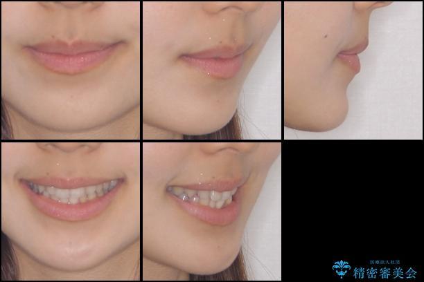 前歯のデコボコを治したい インビザラインによる非抜歯矯正治療の治療前(顔貌)