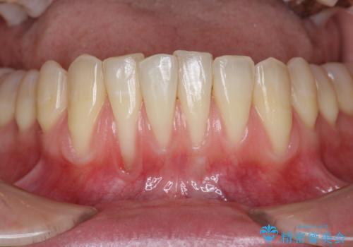 [歯茎の再生]  歯肉移植3年経過後の状態の症例 治療前
