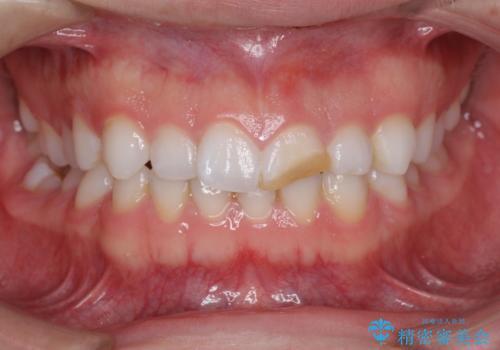 転んで歯が折れた 神経の治療とセラミックによる補綴処置の治療前