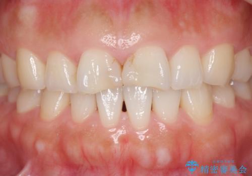 欠けた歯 セラミック治療での審美回復の治療前