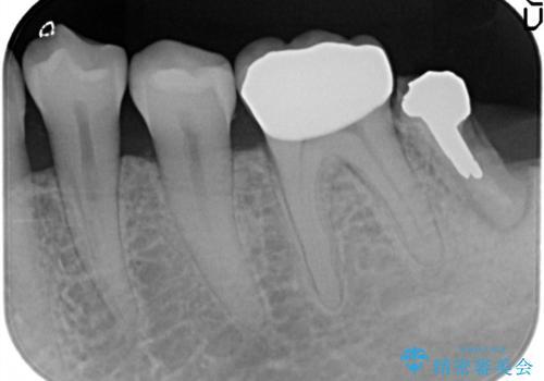 奥歯がかけた、見た目もきれいに治療したいの治療後