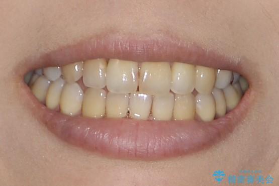 八重歯と反対咬合、下の前歯が1本少ない インビザラインによる非抜歯治療 invisalignの治療後(顔貌)
