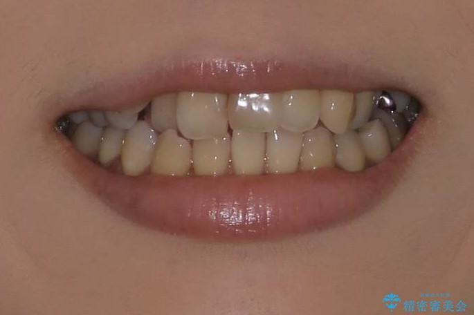 八重歯と反対咬合、下の前歯が1本少ない インビザラインによる非抜歯治療 invisalignの治療前(顔貌)