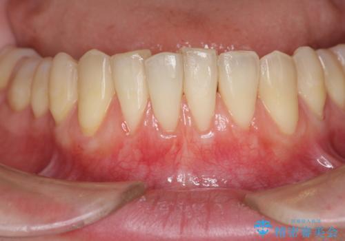 [歯茎の再生]  歯肉移植3年経過後の状態の治療中
