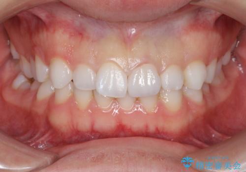 転んで歯が折れた 神経の治療とセラミックによる補綴処置の治療後