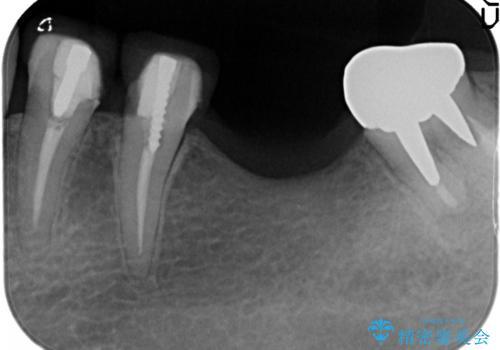 骨が薄い部位への骨造成をともなうインプラントの治療前