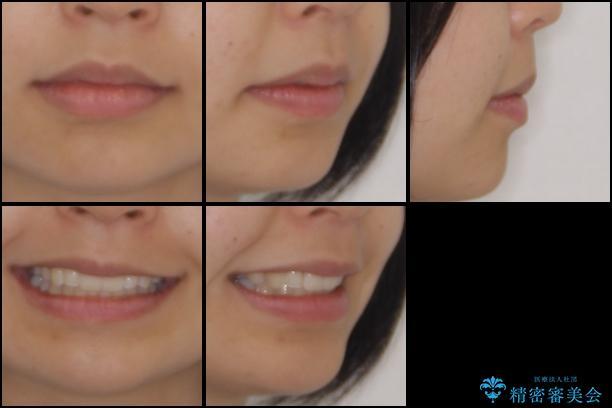 転勤しても治療を継続 ワイヤー矯正からインビザラインへの切り替えの治療後(顔貌)