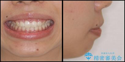 気になる出っ歯とすきっ歯をインビザラインで改善の治療後(顔貌)