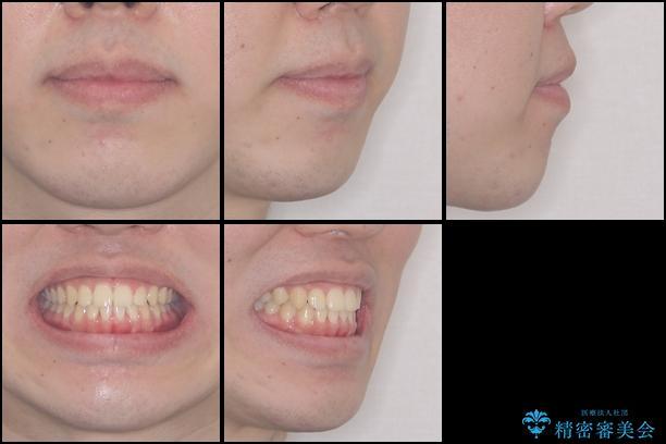 前歯のデコボコをワイヤー矯正で速やかに改善の治療後(顔貌)