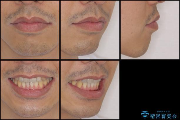 インビザラインによる口元の改善の治療後(顔貌)