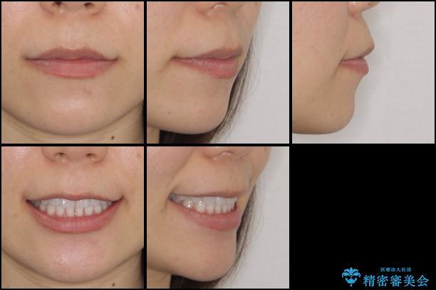 反対咬合を治したい インビザラインによる矯正治療の治療後(顔貌)