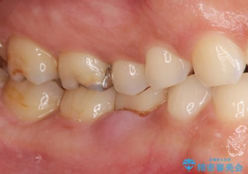 残せなくなってしまった乳歯 インプラントによる補綴の治療前