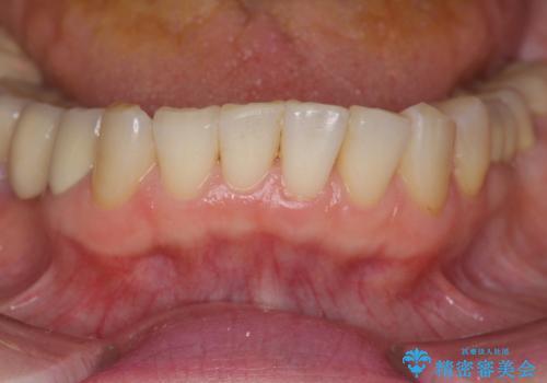 前歯の突き上げを改善する <span class=