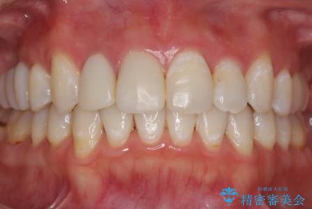 歯を透明感のある白さに。の症例 治療後