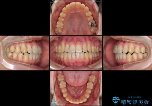 インビザラインによる口元の改善の治療中
