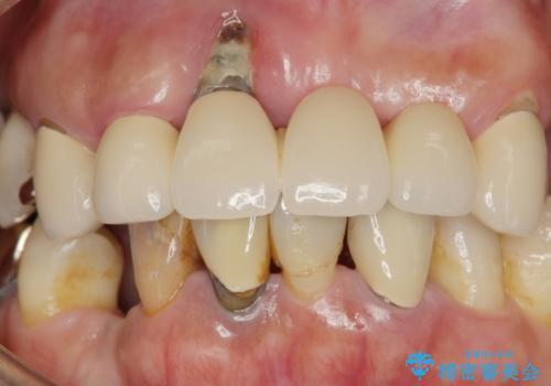 歯周病 全顎治療の治療前
