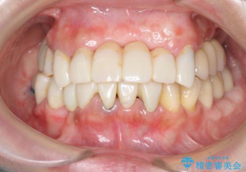 歯周病 全顎治療の治療中