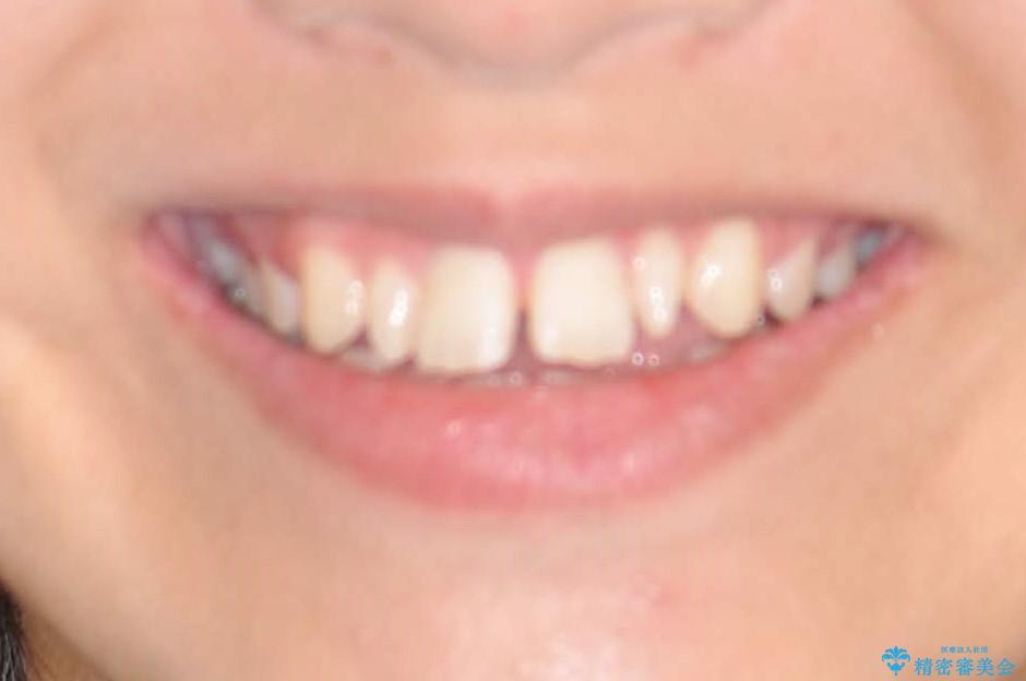 歯の形態修正も含めた矯正治療&セラミック治療の治療前(顔貌)