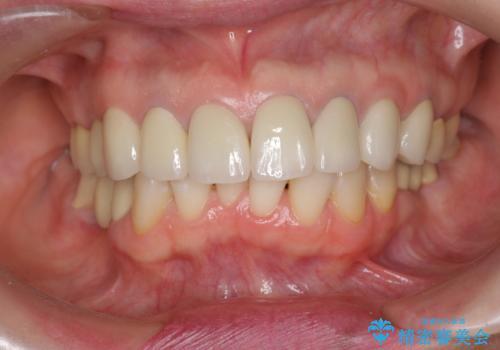 前歯の突き上げを改善する インビザライン による小矯正の治療前