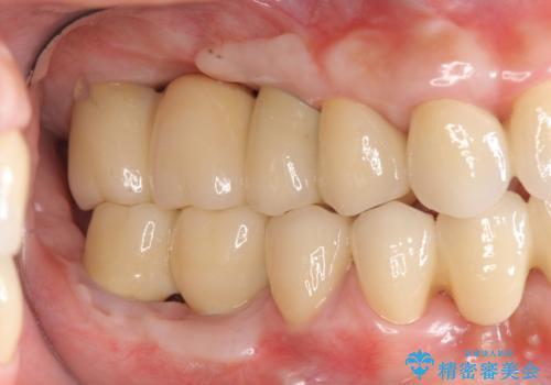 歯周病 全顎治療の治療後