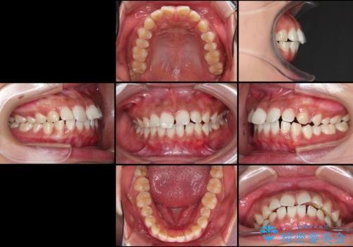 気になる出っ歯とすきっ歯をインビザラインで改善の治療前