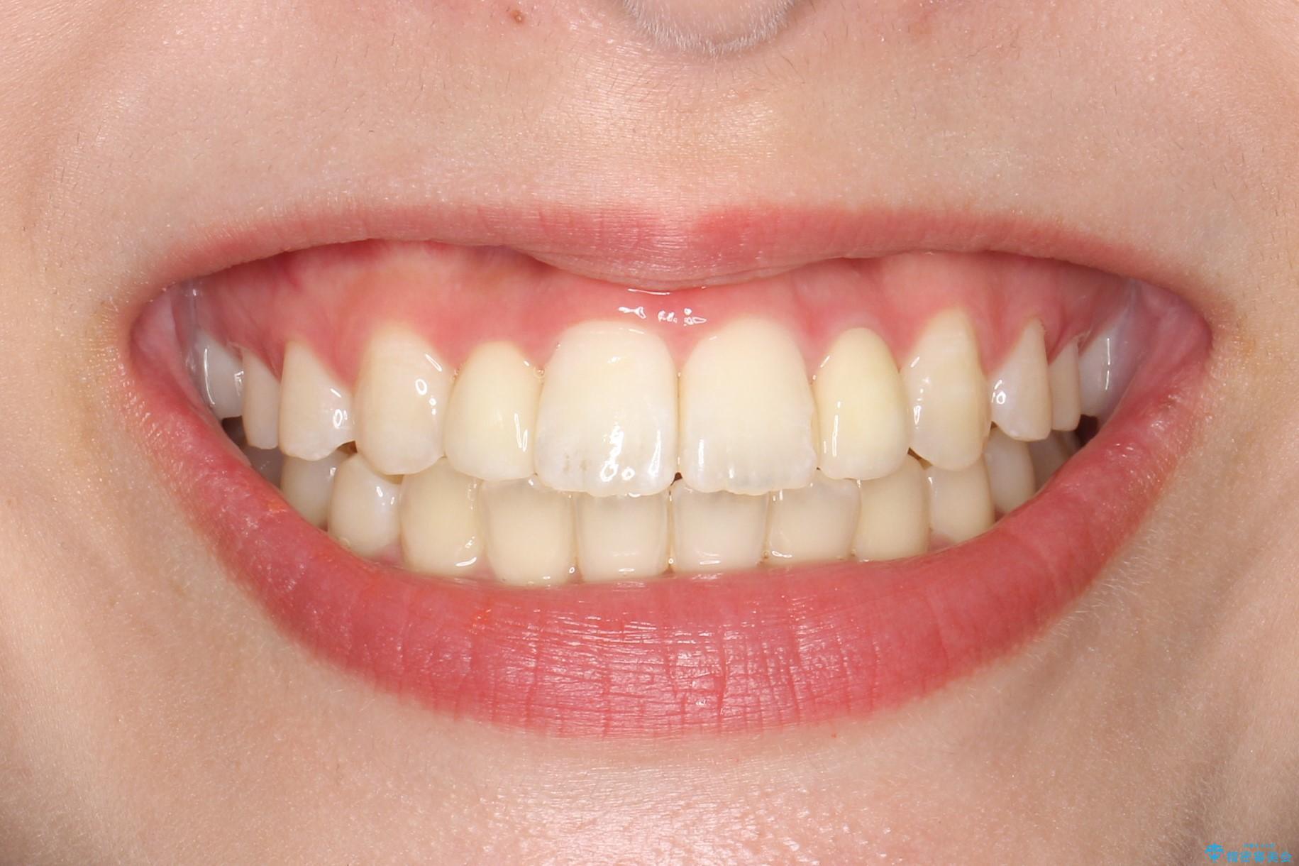 歯の形態修正も含めた矯正治療&セラミック治療の治療後(顔貌)