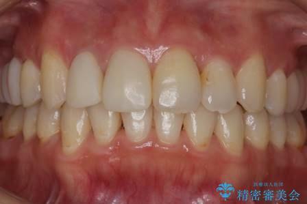 歯を透明感のある白さに。の症例 治療前
