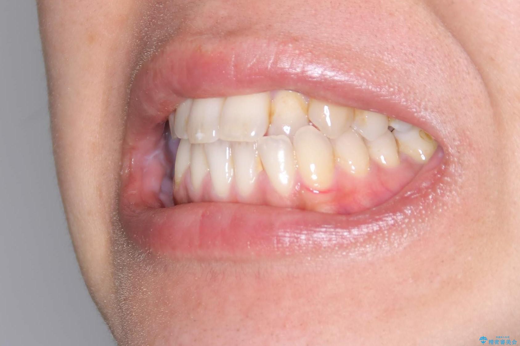 Invisalign インビザライン によるガタつき、受け口傾向の改善の治療前(顔貌)