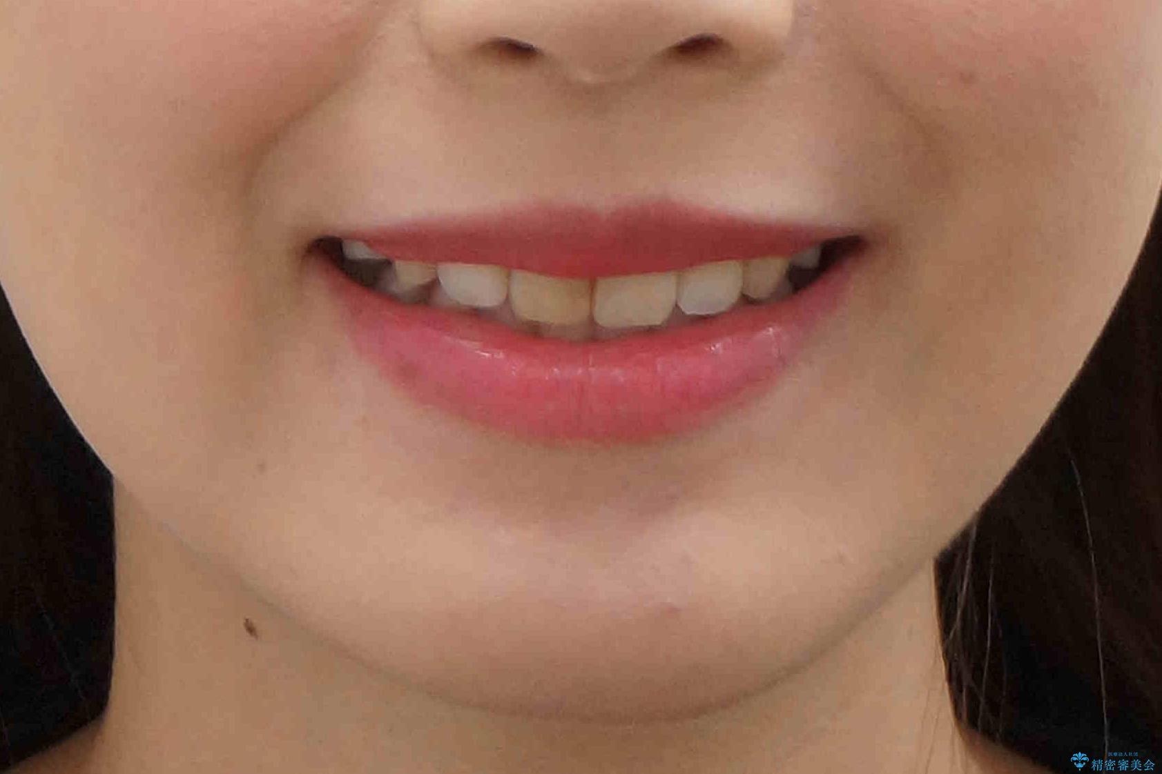 八重歯 前歯のがたがた 抜歯してワイヤー矯正の治療後(顔貌)