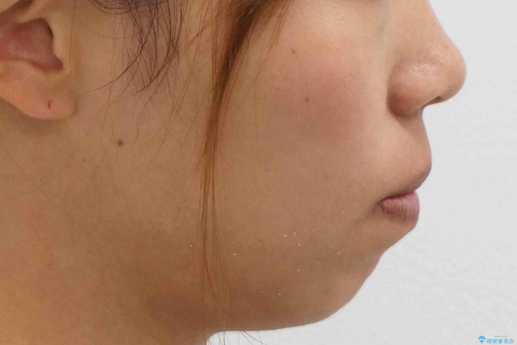 八重歯 抜かずにマウスピース矯正治療の治療後(顔貌)