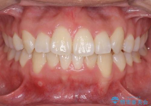 八重歯 抜かずにマウスピース矯正治療の症例 治療後