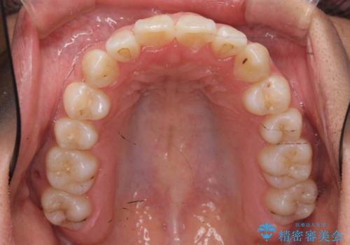 八重歯 抜かずにマウスピース矯正治療の治療後