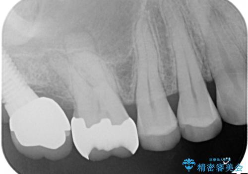 感染した奥歯 痛くて咬めない 根管治療→かぶせ物で痛みを取り除き、かみ合わせを回復するの治療前