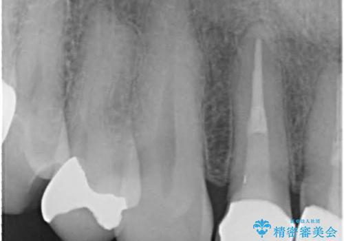 金属だらけの奥歯 根管治療のやり直しとセラミック化の治療前