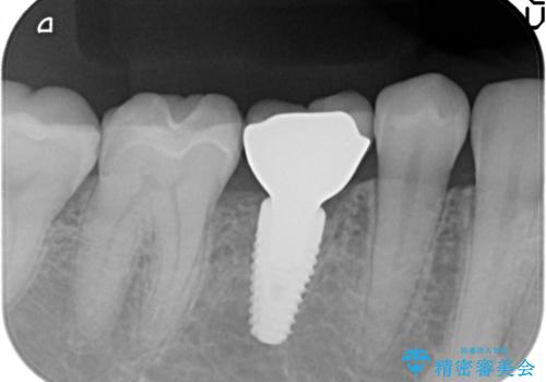 残せなくなってしまった乳歯 インプラントによる補綴の治療後