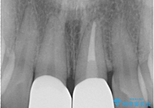 前歯の長さをそろえる 歯周外科とセラミックの治療後