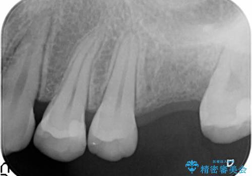 奥歯が割れてしまった! → インプラントによるかみ合わせの回復の治療前